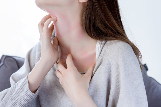 Closeup  girl is scratching her neck with nails. Reddened, inflamed body parts causes discomfort and itching. Young woman is suffering from bouts of allergies. Dermatological skin diseases concept.