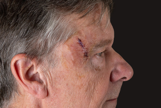 Senior adult male with stitches in the cut after surgery for removal of basal cell carcinoma caused by sun damage