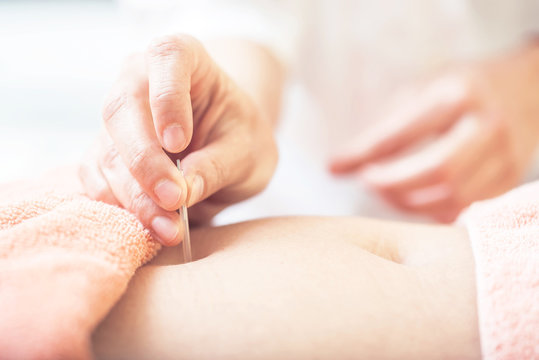 Woman on acupuncture