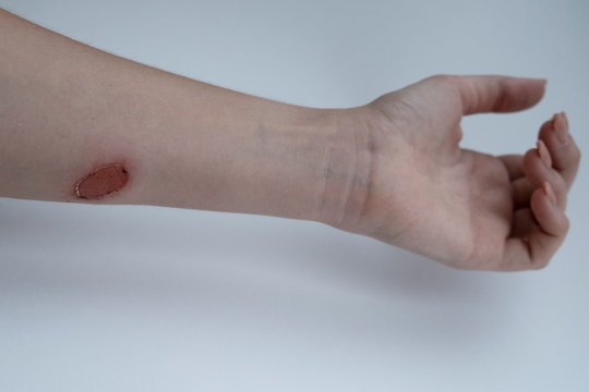 Second degree burn of a woman's hand on white background