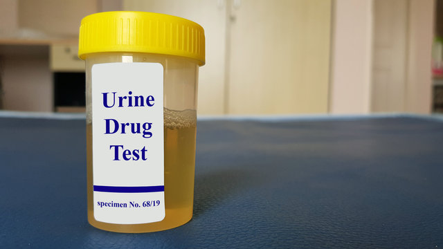 Laboratory sample of urine for drugs or substance test.  Drug test is technical analysis of specimen to determine illegal drug abuse as cannabis, cocaine, methamphetamine, heroin and alcohol level.