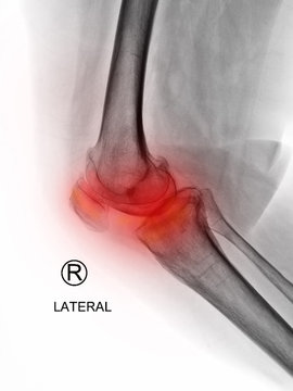 Film X-ray knee radiograph show inflammatory arthritis disease (IA) from rheumatoid disorder (RA) or rheumatism. The patient has knee pain, joint stiffness and walking problem. medical imaging concept