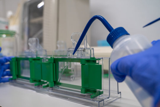 The general process preparation for protein levels detection is using western blot analysis. This method is involved in Protein separation by gel electrophoresis.