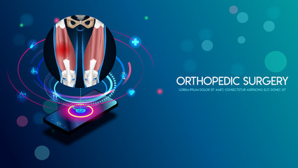 Medical orthopedic and the future of the smart hospital. Treatment for orthopedics traumatology of quadriceps muscle and joints injury. Medical presentation, hospital. Vector illustration