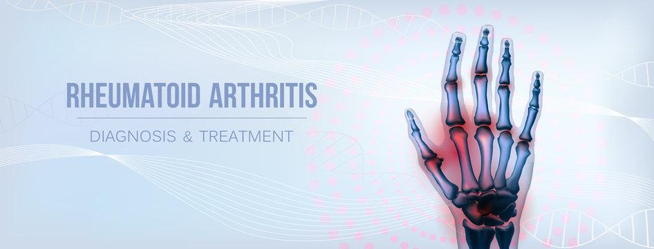 Horizontal rheumatoid arthritis hand sore joints concept for social media