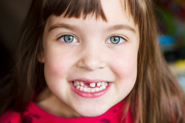 cute little girl without a tooth