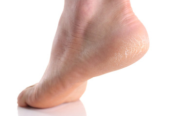 The heel of the foot with bad skin is covered with cracks
