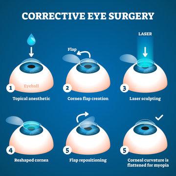 Corrective eye surgery vector illustration. Laser process education scheme.