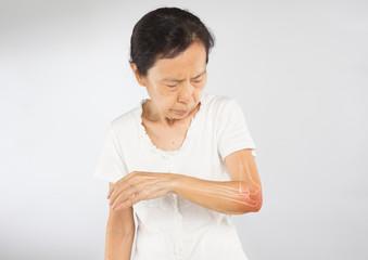 old asian woman feel elbow bones injury