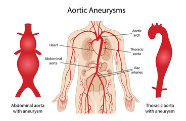 Aortic aneurysms: Thoracic and Abdominal. Arterial circulatory system of the abdominal. Abdominal aorta and thoracic aorta with aneurysm. Vector illustration in flat style isolated on white background