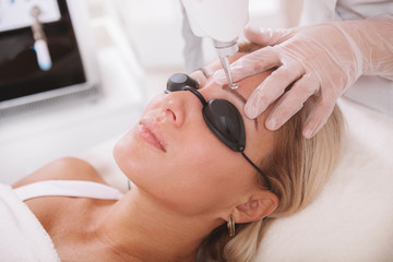 Close up of a mature woman getting her tattooed eyebrows removed with laser. Dermatologist removing eyebrow tattoo of a female patient