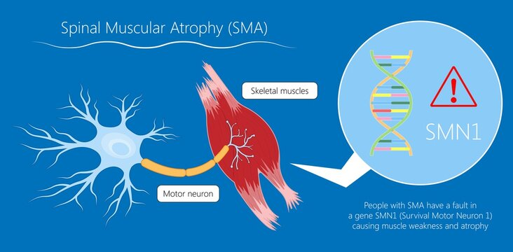Spinal muscular atrophy SMA genetic disorder
