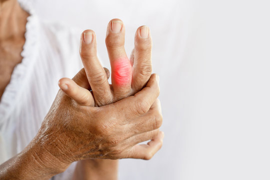 Asian woman hand suffering from joint pain with gout in finger