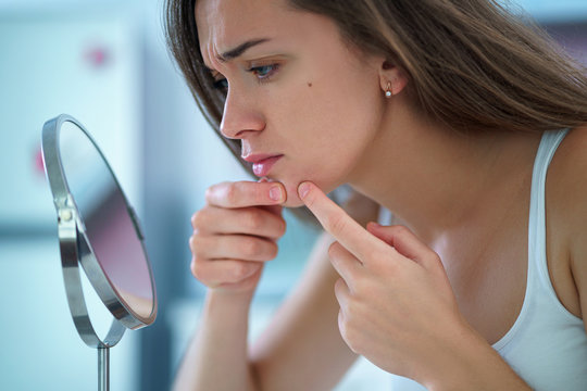 Upset stressed sad acne woman with problem skin squeezes pimple at home in front of a small round mirror