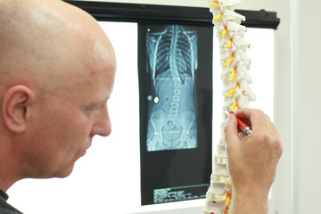 specialist  with model of spine in hand,watching image of chest at x-ray film viewer