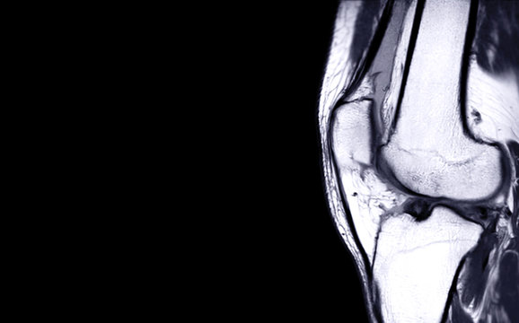 Compare of MRI Knee joint or Magnetic resonance imaging  sagital view for detect tear or sprain of the anterior cruciate  ligament (ACL) for background.