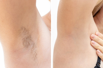 Woman underarms, armpit before and after depilation, laser waxing and sugaring