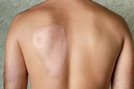 Healed car after second degree skin burn on male back. Medical and healthcare concept