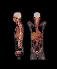 PET CT Scan fusion image