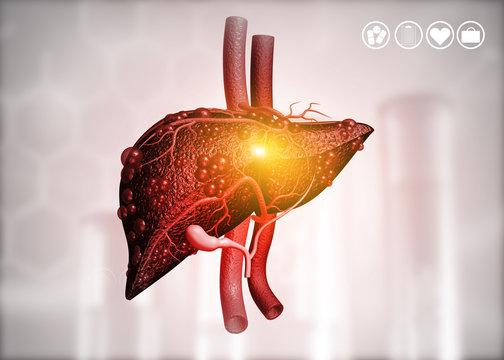 Diseased human liver on science background. 3d illustration .