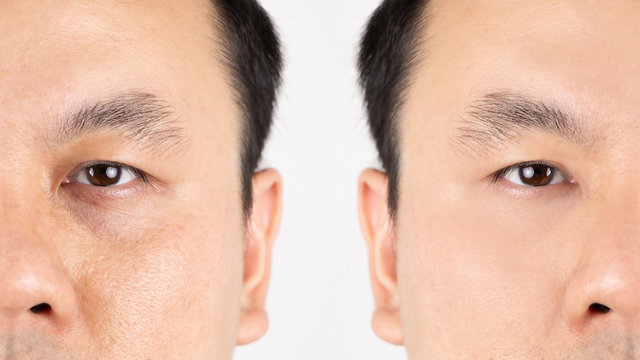 Close up of middle aged Asian man face with wrinkles, sun damage, dark circles under the eyes, before and after procedures.
