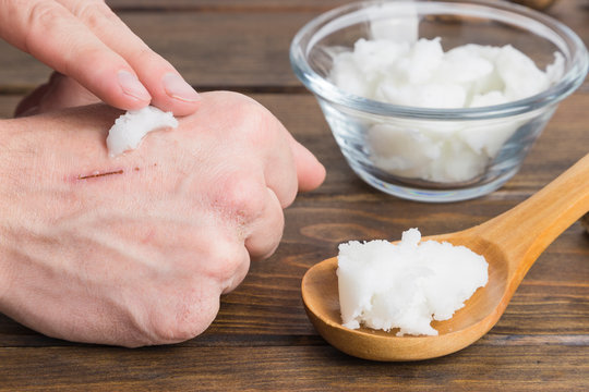 Hand applying natural coconut oil on a Skin wound. Wooden background.