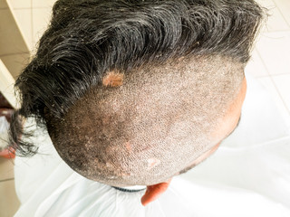 a young man is trimming his half head shaved