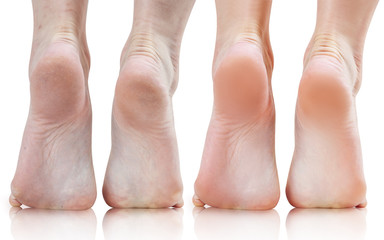 Female feet with dry skin before and after treatment or retouch.