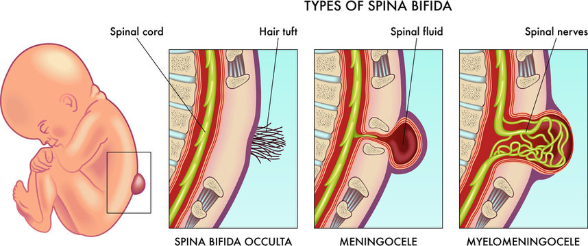 Medical illustration of infant spina bifida with annotation.