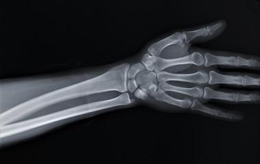 normal radiography of hand and wrist bones, traumatology and orthopedics