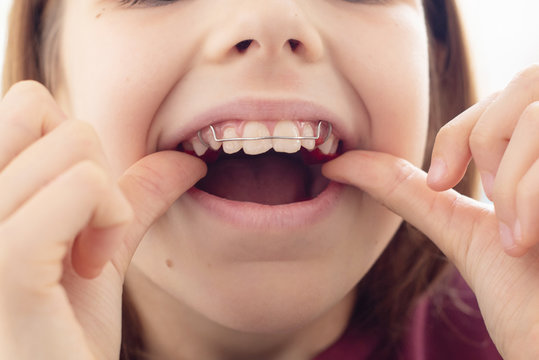 Child with removable orthodontic appliance in mouth. Concept of healthy teeth and a beautiful smile.