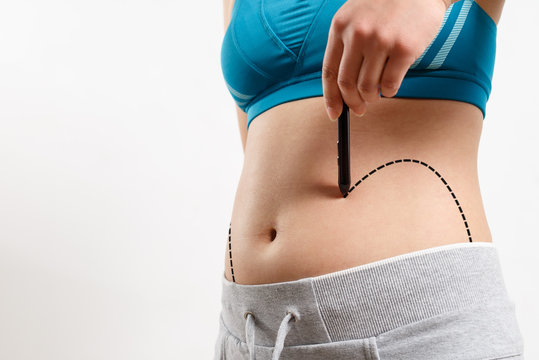 a woman shows a dotted line on her body liposuction zone