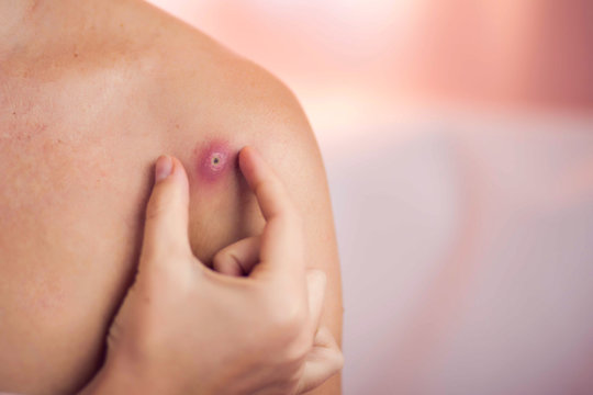 Woman tries to crush boil on her shoulder. Medicine and skin care concept
