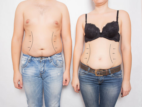 Man and woman overweight and obese on his stomach on a white background. Abdominoplasty and liposuction plastic surgery concept, markers on the abdomen
