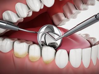 3D illustration showing dentist tools and dental plaque on model. 3D illustration