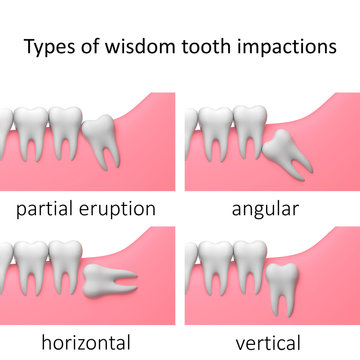 types of wisdom tooth impactions