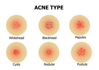 Types of acne on the face