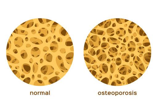 osteoporosis bone graphic vector / low density human calcium / anatomy