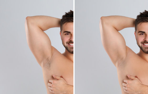 Collage of man showing armpit before and after epilation on light grey background