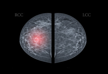X-ray Digital Mammogram  or mammography  both side of the breast  CC view  for finding Breast cancer in women  showing Breast Calcifications in right breast.