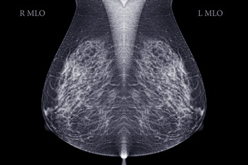 X-ray Digital Mammogram or mammography  image MLO view  for screening  Breast cancer.