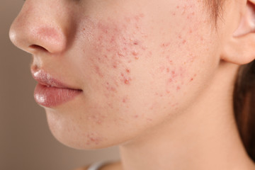 Teenage girl with acne problem on beige background, closeup