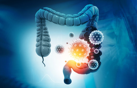 Colon cancer, bacterias, viruses in sick unhealthy intestine. 3d illustration.