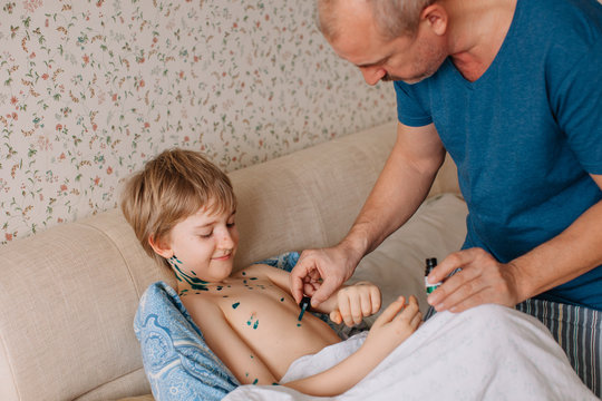 Father applying medicine on boy with chickenpox