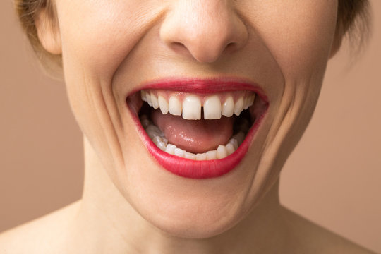 Unrecognisable Woman Laughing