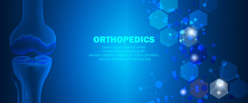 Medical orthopedic and the future of the smart hospital. Treatment for orthopedics traumatology of knee bones and joints injury. Medical presentation, hospital. Vector illustration