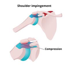 Shoulder impingement vector illustration. Illustration of the muscle tendon and bursa being compressed by shoulder blade acromion