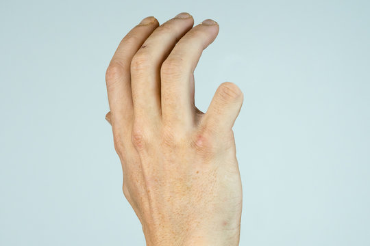 caucasian man hand with amputaded Little finger isolated on White background