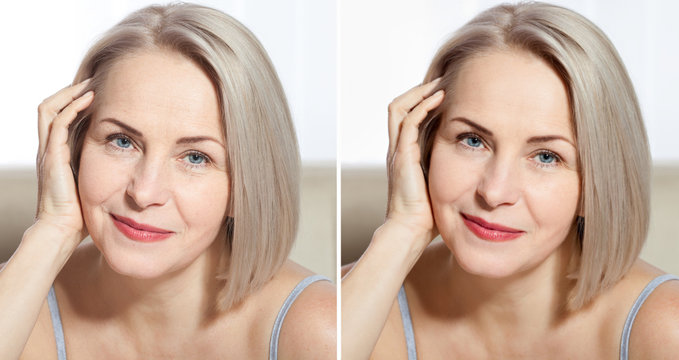 Middle age close up woman happy face before after cosmetic procedures. Skin care for wrinkled face. Before-after anti-aging facelift treatment. Facial skincare and contouring.