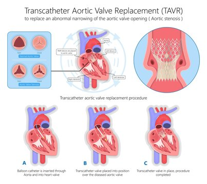 Transcatheter aortic valve replacement (TAVR) minimally invasive surgery